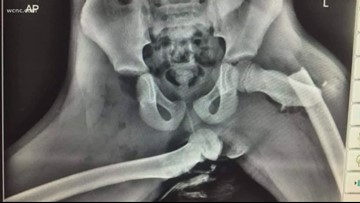 'Almost like sitting on a keg of dynamite' | X-ray of car crash injuries go viral
