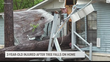 3-year-old injured after tree falls on home