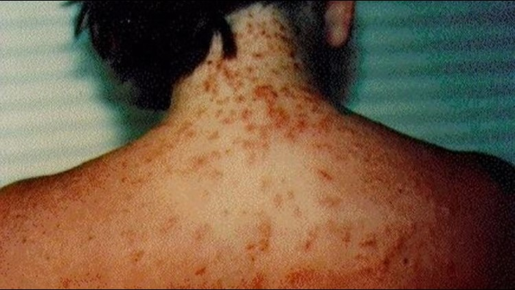 Sea lice warning posted for Florida Panhandle beaches