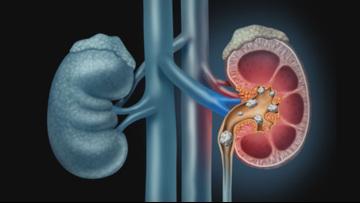 Speaking of Health: Kidney stones