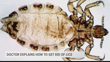 Doctor Explains How to Get Rid of Lice