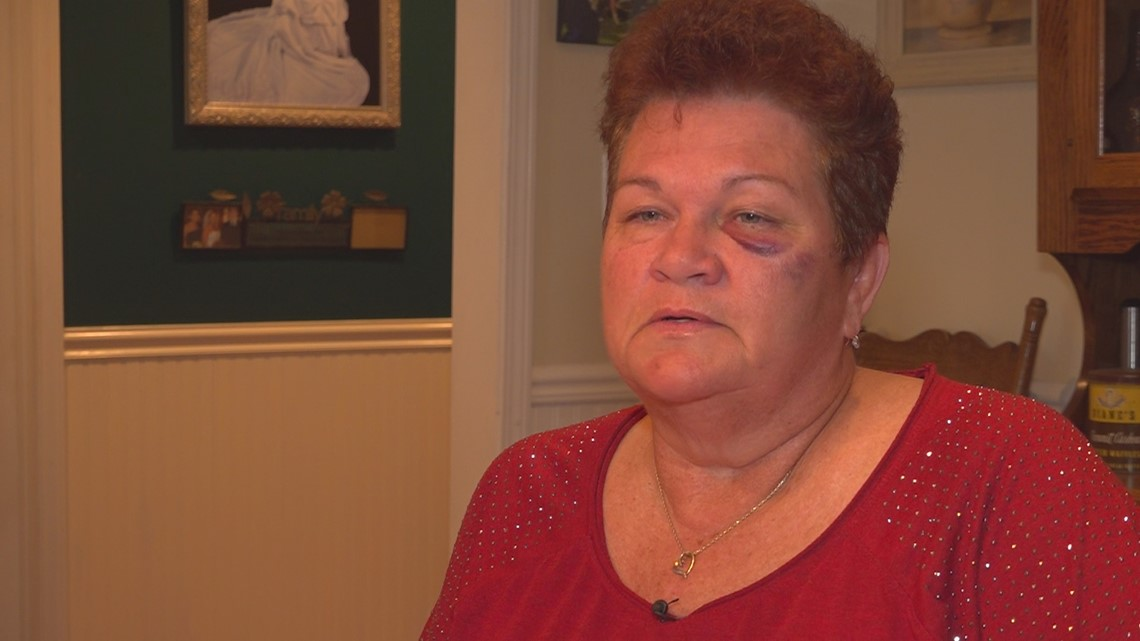 'I'm glad it was me and instead of them': School teacher assaulted at Lexington County church