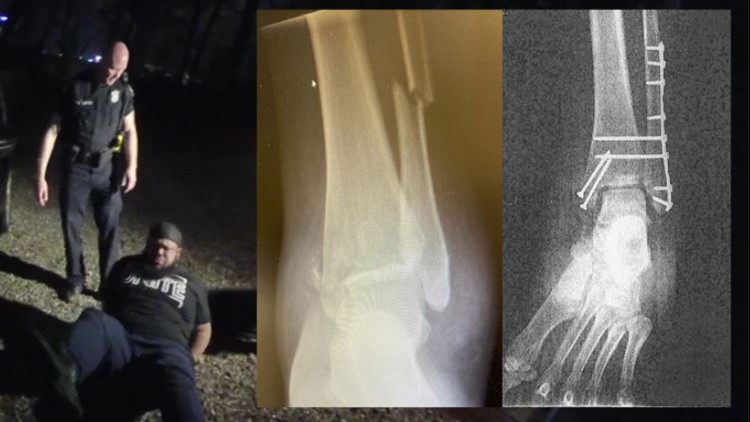 'Not acceptable': Former Atlanta police chief says officer should have been off force before breaking man's ankle