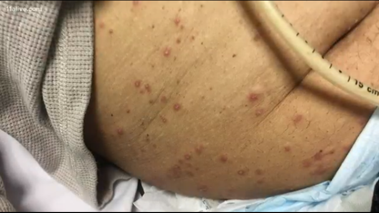 veteran ant bites